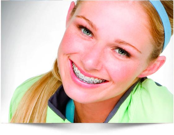Ortodoncia dental en adolescentes