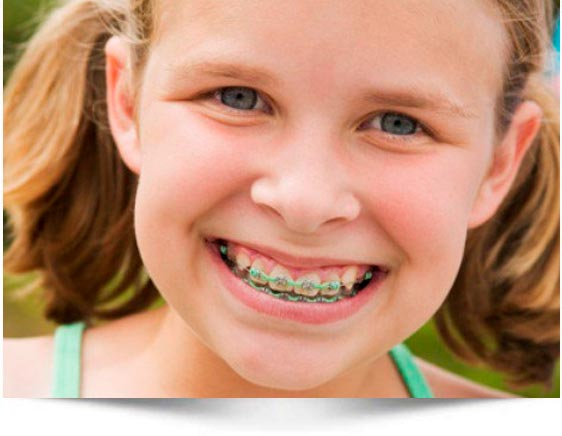 Ortodoncia dental niños Zaragoza