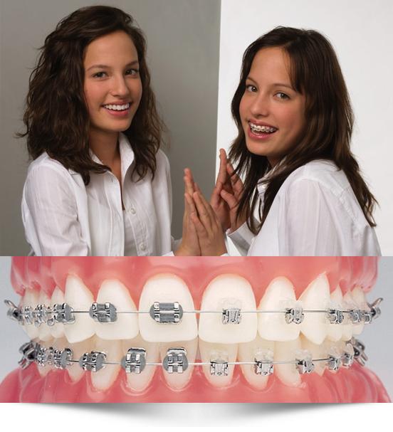 ortodoncia para niños en Zaragoza