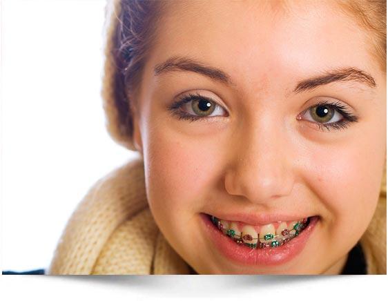 Ortodoncia en adolescentes