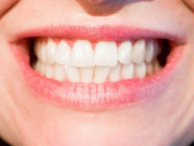 infecciones buco dentales